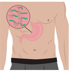 A stomach full of helicobacter pylori in a body vector