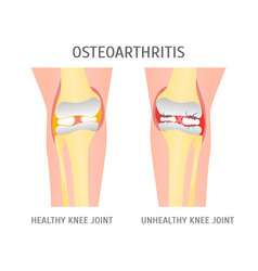 Cartoon osteoarthritis healthy and unhealthy knee vector