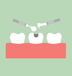 Tooth amalgam filling with dental tools vector