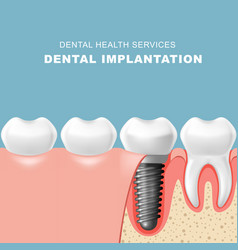Teeth and dental implantat inserted into gum vector