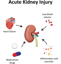 Acute Kidney Injury Diagram Renal vector image