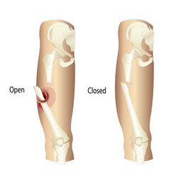 Femur fractures vector
