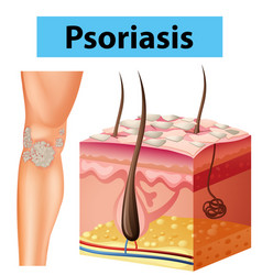 Diagram showing psoriasis on human skin vector