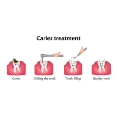 Treatment of caries Drilling a tooth Sealing of vector image