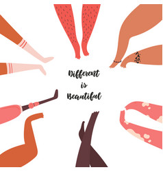 Different is beautiful diverse group people legs vector