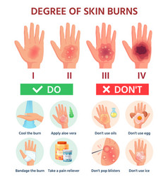burns degree first aid for burn wound fire vector image