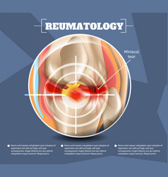 realistic reumatology medicine in 3d vector image