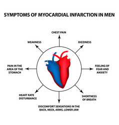 symptoms myocardial infarction men a heart attack vector image