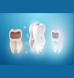3d realistic teeth cleaning process tooth vector