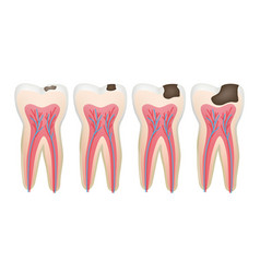 caries tooth decay pulpit dental problem vector image