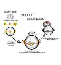 Multiple sclerosis neurology vector