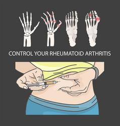 Rheumatoid arthritis control injection in stomach vector