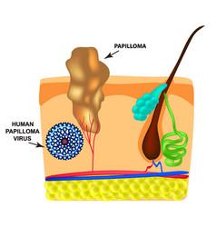 Human papilloma virus causes formation of vector