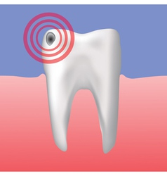hole in the tooth vector image