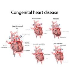 Congenital heart disease vector