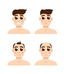 Hair stages loss types of baldness on male head vector