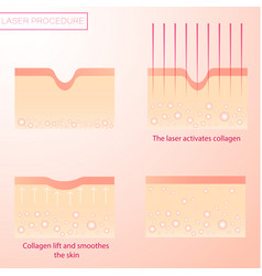 Procedure laser rejuvenation resurfacing skin vector