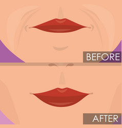 Woman lips before and after treatment vector