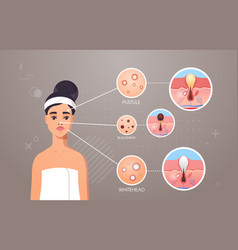 Different types facial skin acne pustule vector