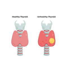 Healthy thyroid gland and unhealthy thyroid with vector