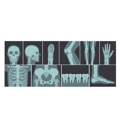 set of many x-rays shots of vector image