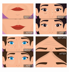 Woman before and after skin treatment vector