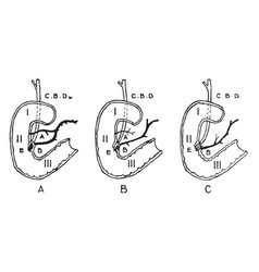 Variations in termination of the pancreatic and vector