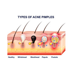 Skin acne anatomy composition vector