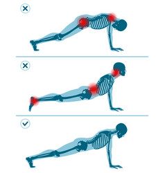 wrong and correct plank pose right and wrong vector image
