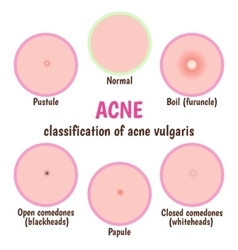 Acne skin care vector