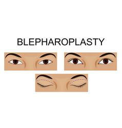 Upper eyelid blepharoplasty vector