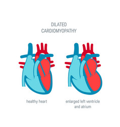 Heart disease concept in flat style vector