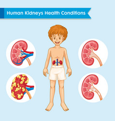 Scientific medical kidney disease vector