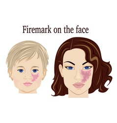 Firemark on the face vector image vector image
