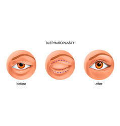 Blepharoplasty of the overhanging eyelid vector