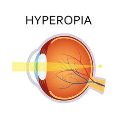 Hyperopia eyesight disorder vector image vector image