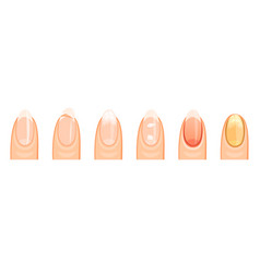 nails healthy and the sick vector image