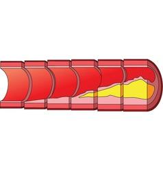 Cholesterol vector image vector image
