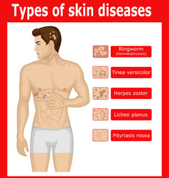 Types of skin diseases vector
