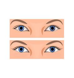 Redness of the eye vector