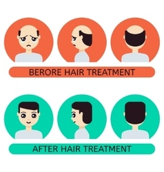 Cartoon man before and after hair treatment vector