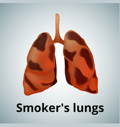 Realistic human sick lungs isolated on white vector