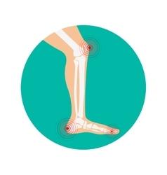 Human leg pain zones design elements vector