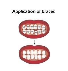 The use of braces Crooked teeth Orthodontics vector image