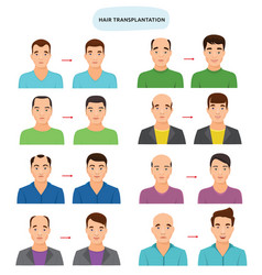 hair transplant hairy transplantation after vector image