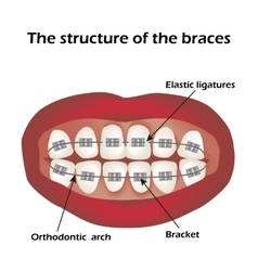 The structure of the braces Orthodontics vector image