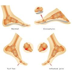 Turf Toe vector