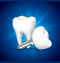 Tooth implant on a blue background vector