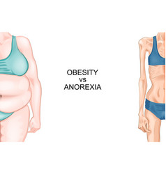 anorexia and obesity vector image