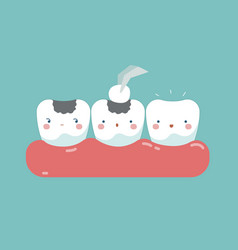 filling tooth teeth and tooth concept of dental vector image